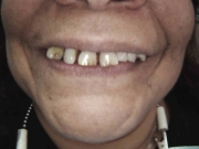 Smile Makeover - Before - Patient presented with multiple missing teeth and spaces. Natural teeth were discolored and protruding due to lack of posterior support. A combination of non-surgical periodontal therapy, extractions and lab fabricated temporary crowns/bridges were placed in Stage 1 of treatment in the maxillary (top) and mandibular (bottom) arches to facilitate healing, and to achieve an immediate improvement in aesthetics. Porcelain crowns/bridges placed and permanently cemented in final stage of treatment.
