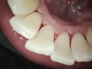 Scaling & Root Planing - After - Patient presented with Type II periodontal disease, treated with scaling & root planing.